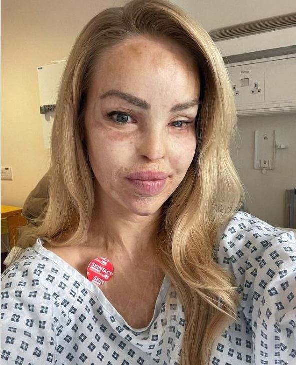 STRAVIČNO Kiselinom joj uništio lice za sva vremena: Bila je na 400 operacija