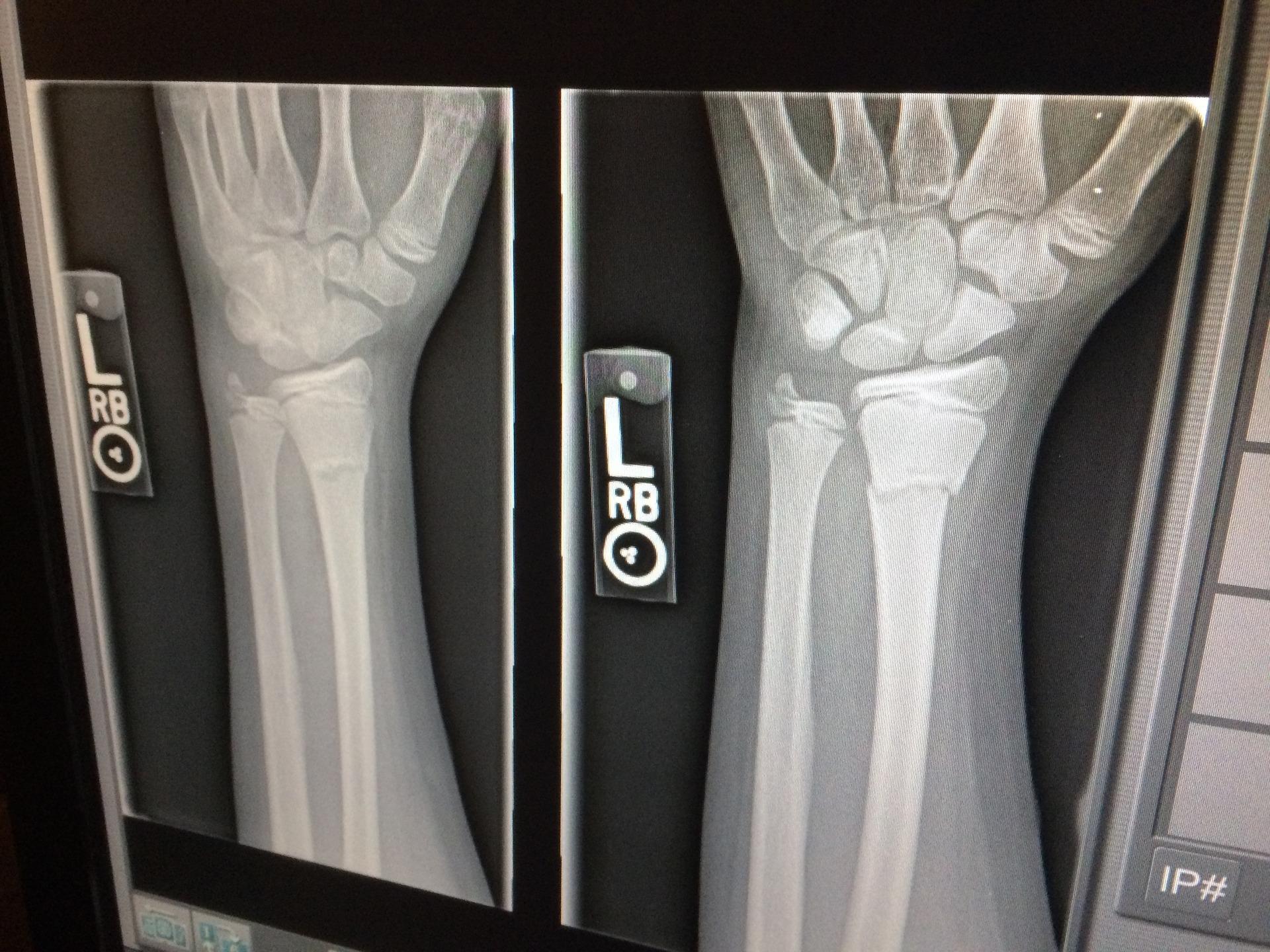 LISTA ČEKANJA OD 3.000 PACIJENATA Do ortopeda u Splitu preko uputnice nemoguće je doći